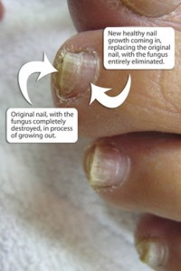 Fresh nail growth after toenail fungus treatment